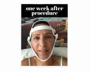 Before Procedure (4)