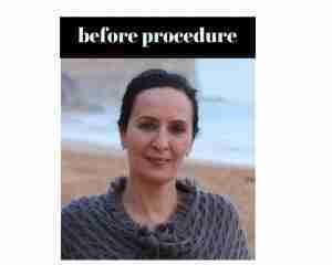 Before Procedure (5)
