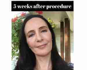 Before Procedure (6)