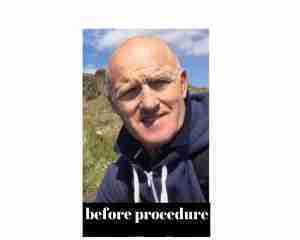 Before Procedure (7)