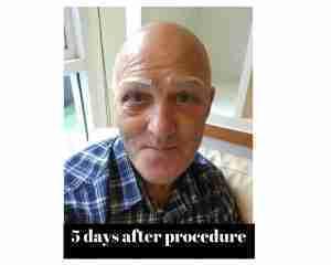 Before Procedure (8)