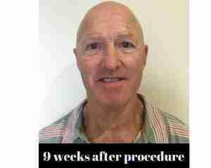 Before Procedure (9)