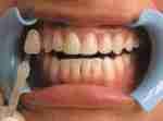 Dental Treatments