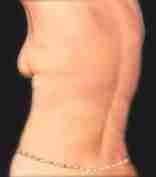 Circumferential Tummy Tuck